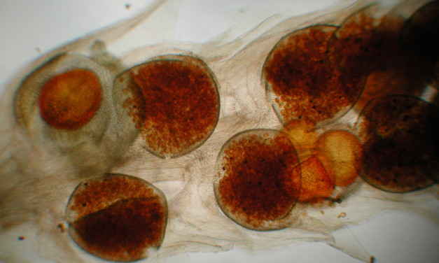 Microspores and Megaspores of Selaginella