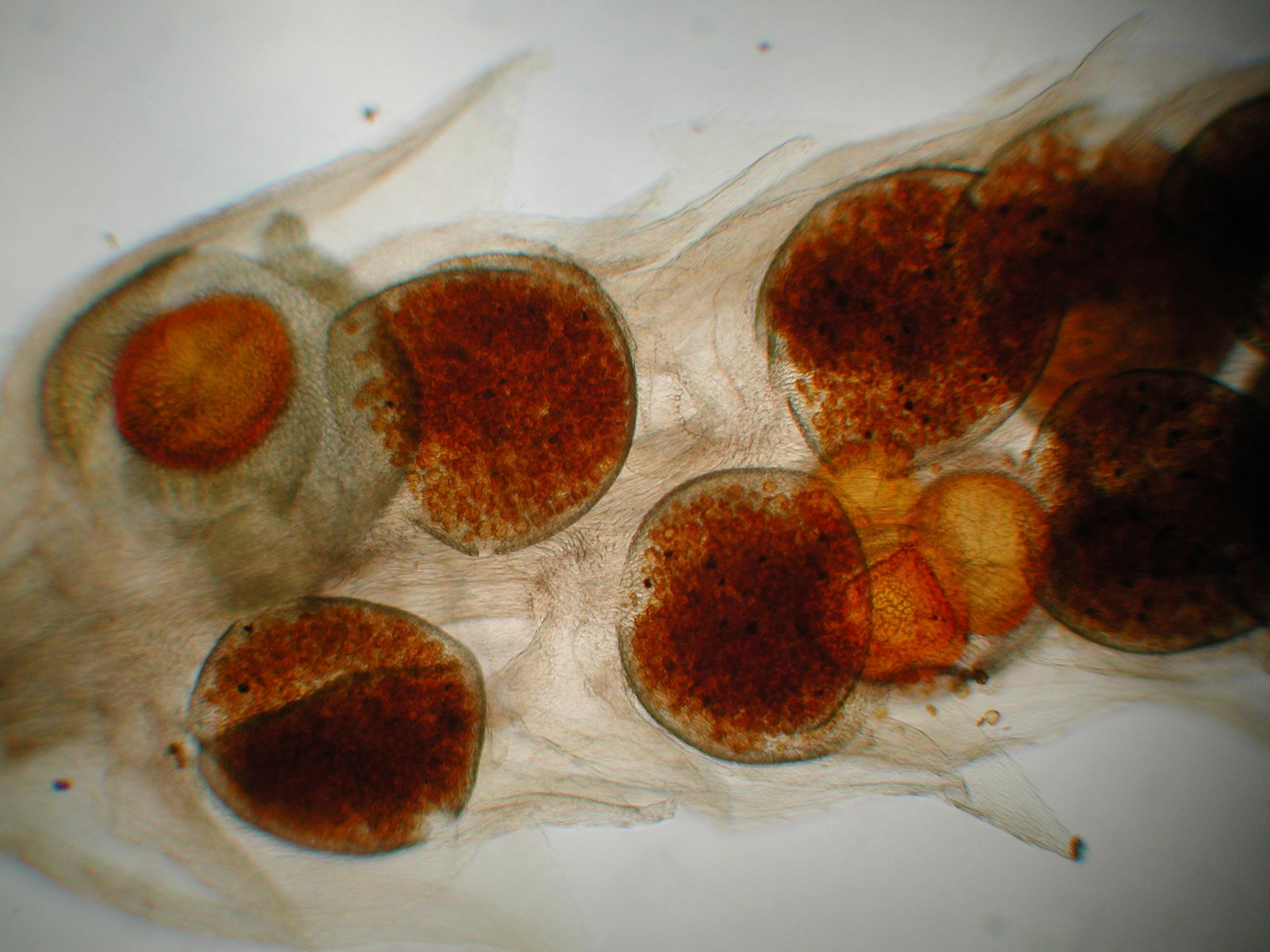 Microspores and Megaspores of Selaginella