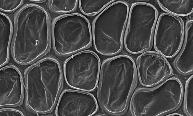 Elaphoglossum lalitae